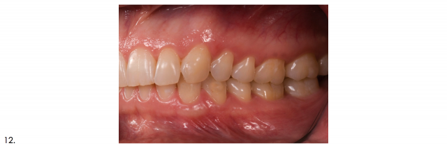 recommended dental patient photographs