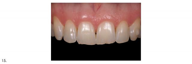 maxillary anterior teeth