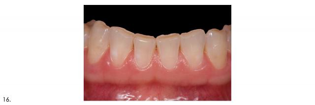 mandibular anterior teeth