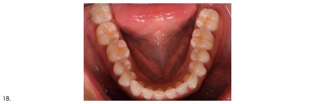 mandibular arch occlusal view