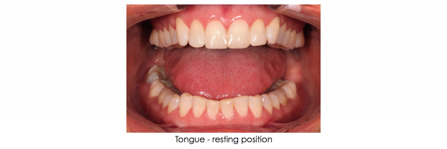 tongue photo dental patient