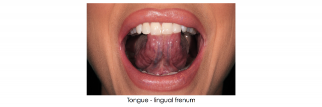 lingual frenum dental photo