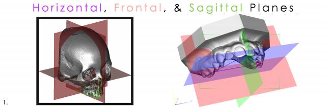 horizontal sagittal frontal dental photography