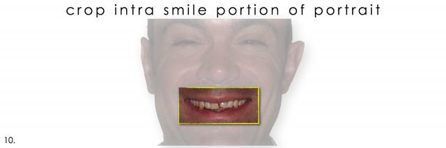 dental photography intra smile portrait