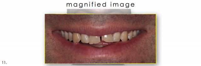 dental photography magnified smile
