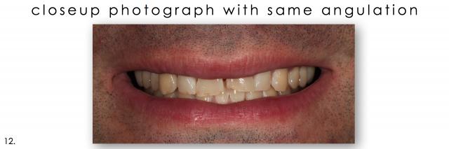 dental photography closeup smile