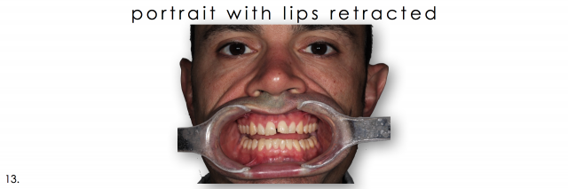 dental photography retracted lips