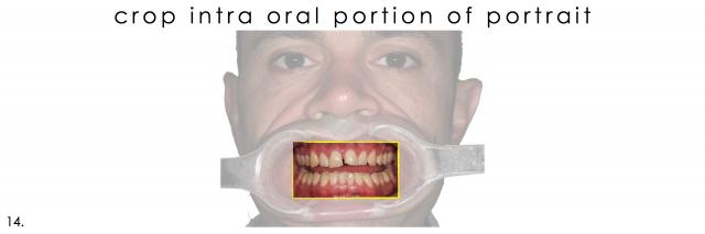 dental photograph intra oral portrait