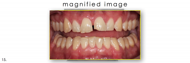 dental photography magnified image