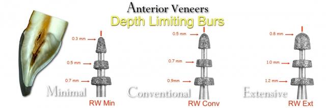 depth limiting burs