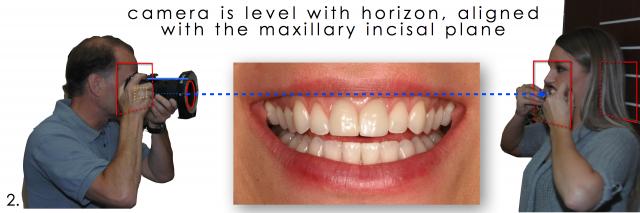 maxillary incisor photo
