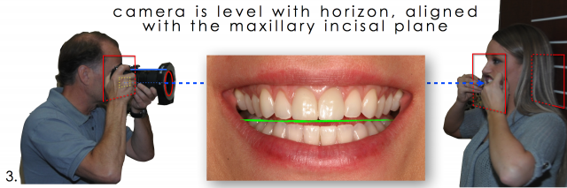 angulation of dental patient photo