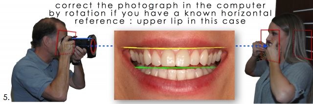 correcting photographs dental patient