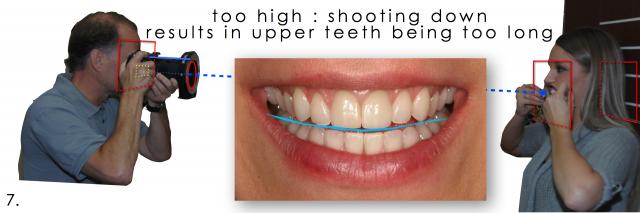 upper teeth photograph
