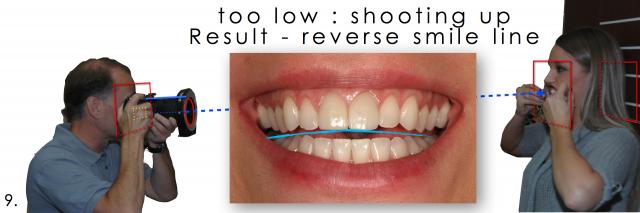 photograph patient smile dentistry