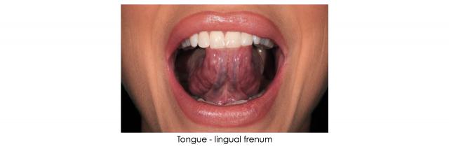 lingual frenum dental patient photography