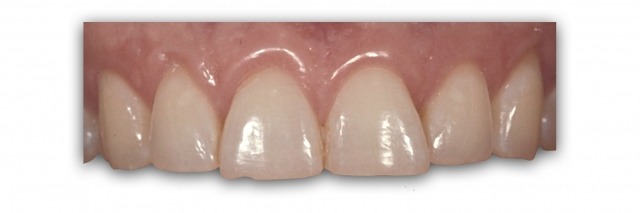outcome-based preparation design anterior teeth figure 1
