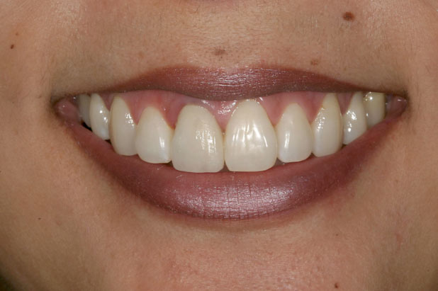 The central incisor is difficult to match