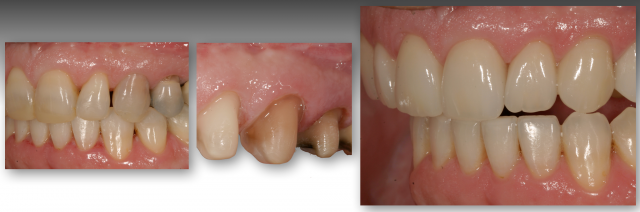 severely discolored teeth treatment