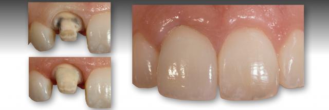 discolored teeth restoration