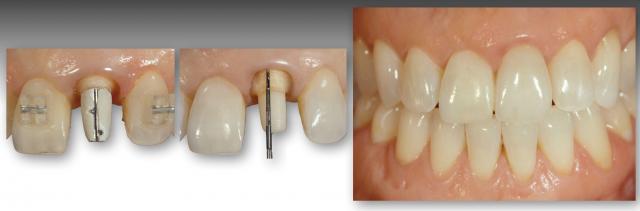 restoring discolored teeth