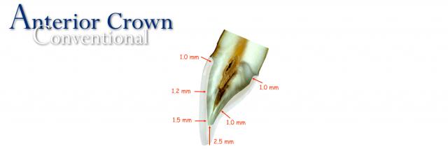 anterior crown restoration