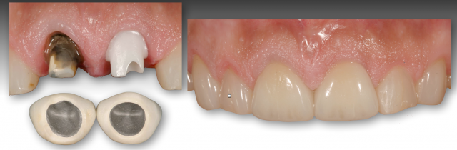 restoration of discolored teeth