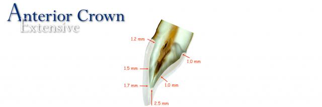 anterior crown extensive restoration