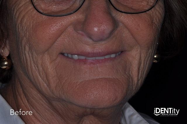 esthetic treatment before smile