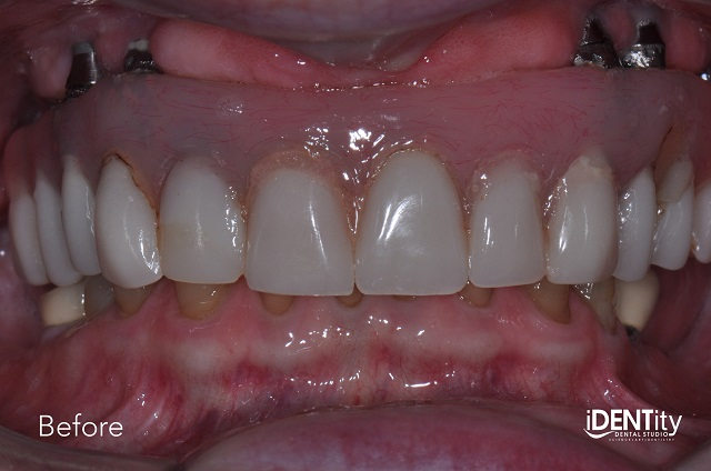 esthetic patient before maxillary implant