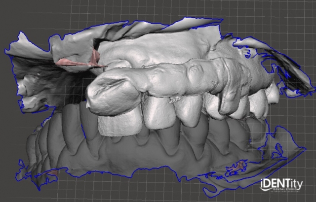 intraoral scan of maxilla and mandible