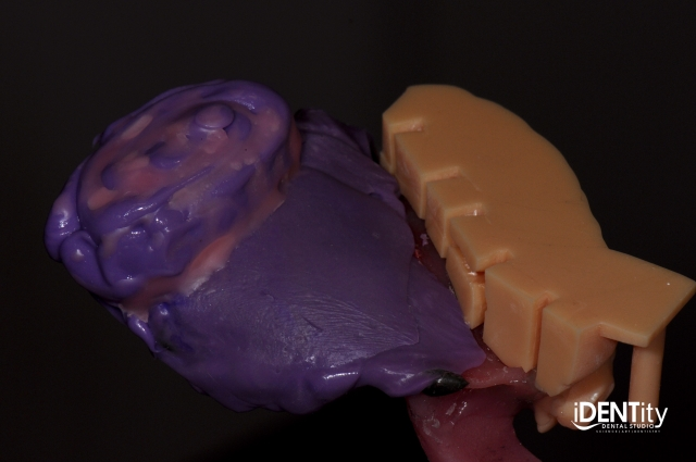 bulb dental impression