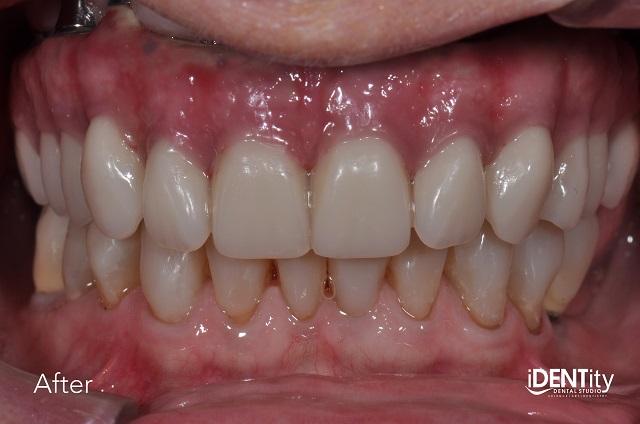 final torque dentistry