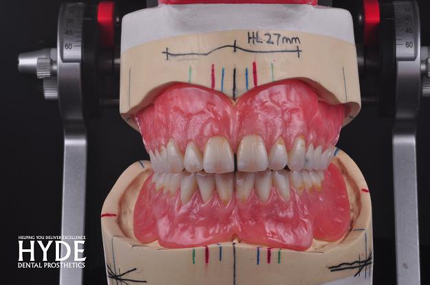 dental prosthetic design