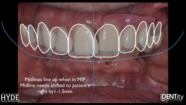 midline planning dentistry
