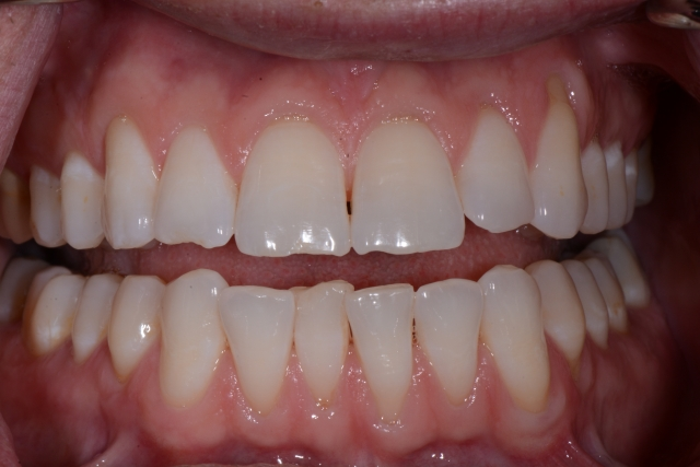 patient with incisal chipping