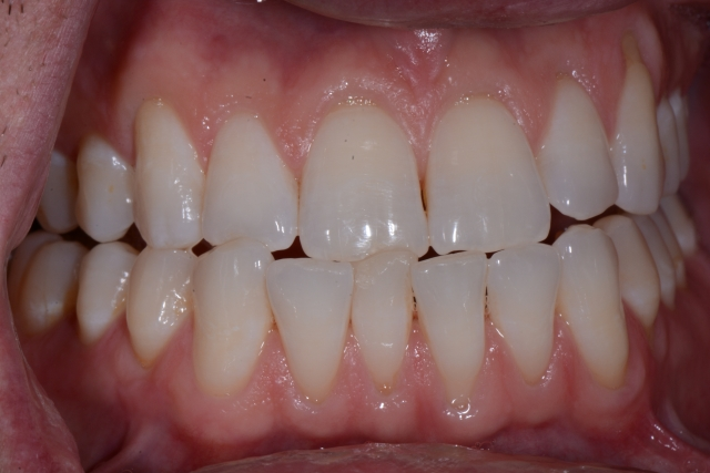 evaluating an incisal chip in tooth