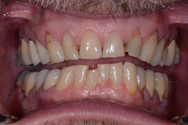 tooth wear caused by attrition or acid erosion