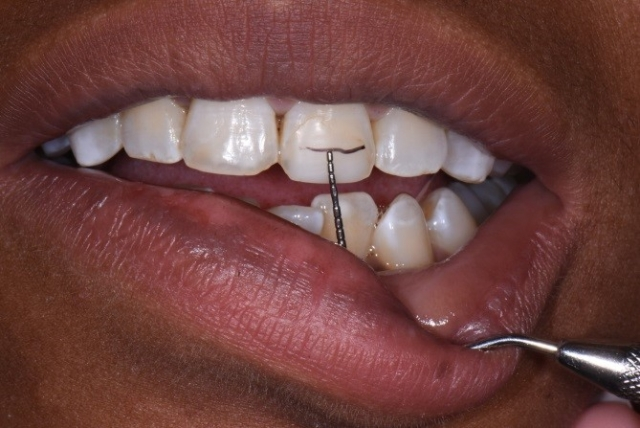 determining incisal edge position