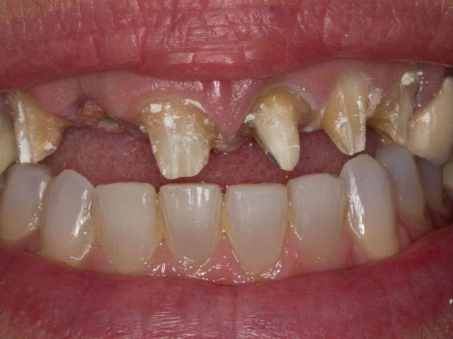 biologic width violation and overpreparation of teeth