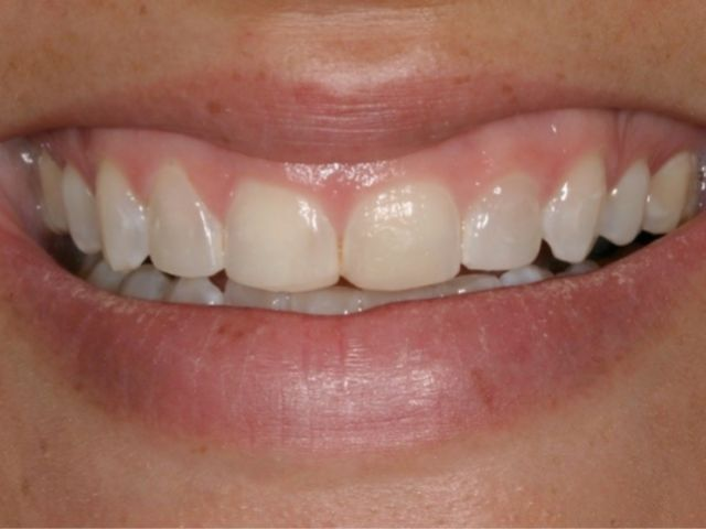 excessive gingival display