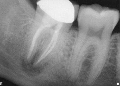 root fracture interdisciplinary care