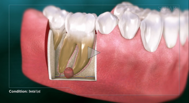 dental cyst patient education
