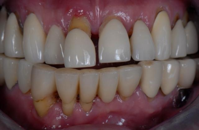 edentulous dental patient treatment