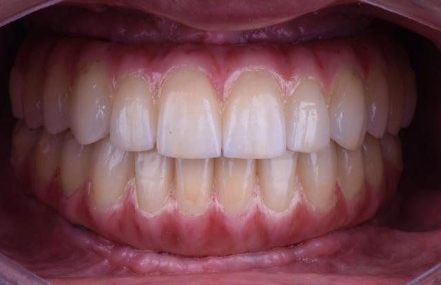 terminal dentition