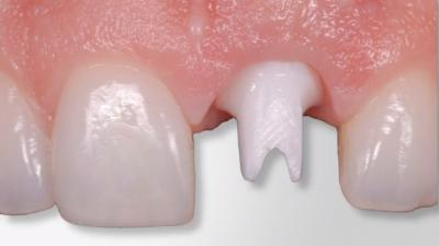 implant placement provisionalization