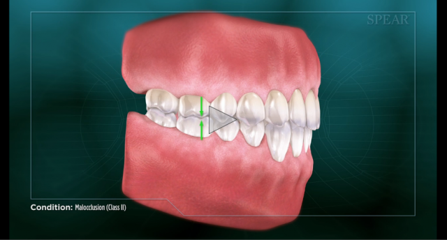 malocclusion overbite patient education