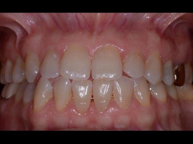 dental study club malocclusion