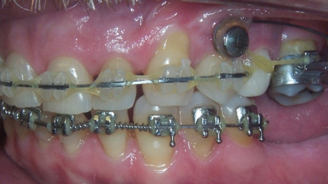 relationship between orthodontics and implants