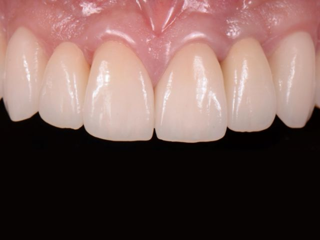 congenitally missing lateral incisors